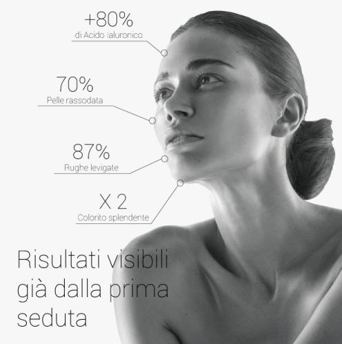 infografica lpg-02